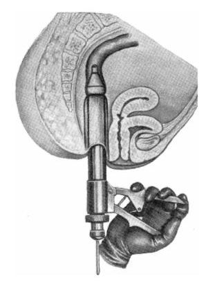 Proctological instrument