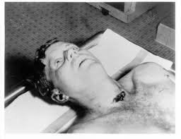 JFK autopsy photo.
